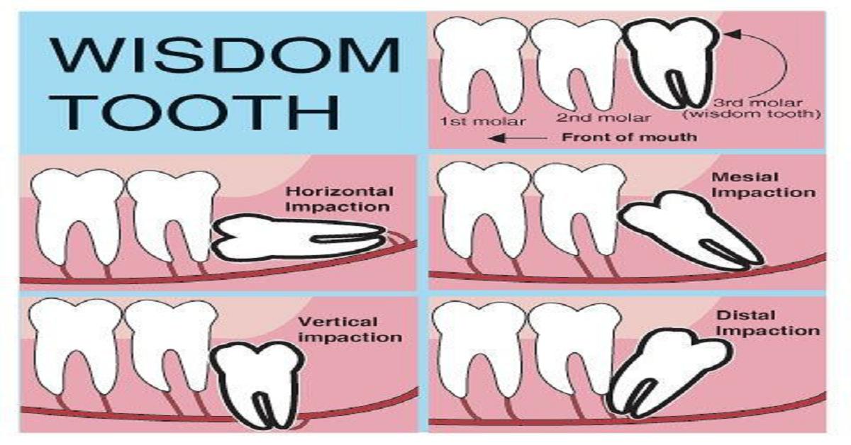 blog-dental-homes-1-1200x628.png