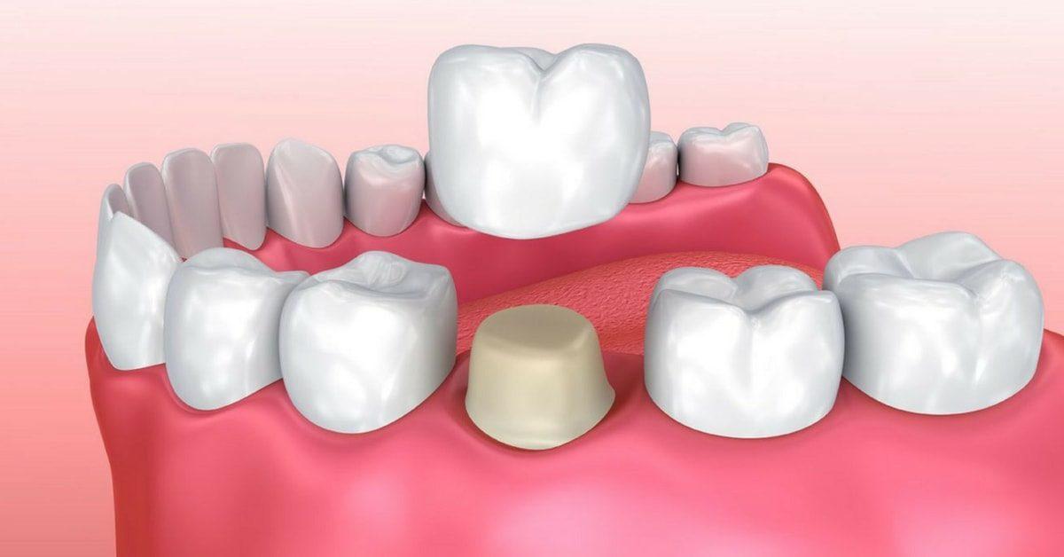 dental_crown_indications_sm-1200x628.jpg
