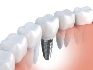 dentalhomes2.jpg
